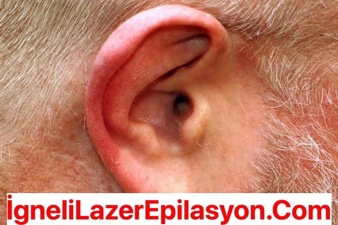 Kulak Kılları-Tüyleri İçin İğneli Epilasyon Yaptıranlar Yorumlar