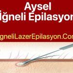 İzmir Aysel İğneli Epilasyon Gidenler Yorumlar Adresi