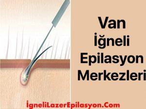 van iğneli lazer epilasyon merkezleri
