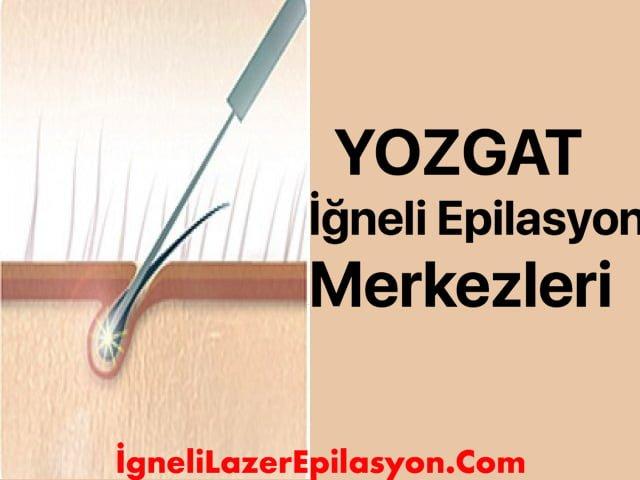 yozgat iğneli lazer epilasyon merkezleri