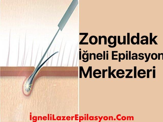 zonguldak iğneli lazer epilasyon merkezleri