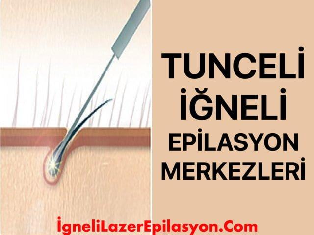 Tunceli iğneli lazer epilasyon merkezleri