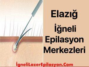 elazığ iğneli lazer epilasyon yapan yerler
