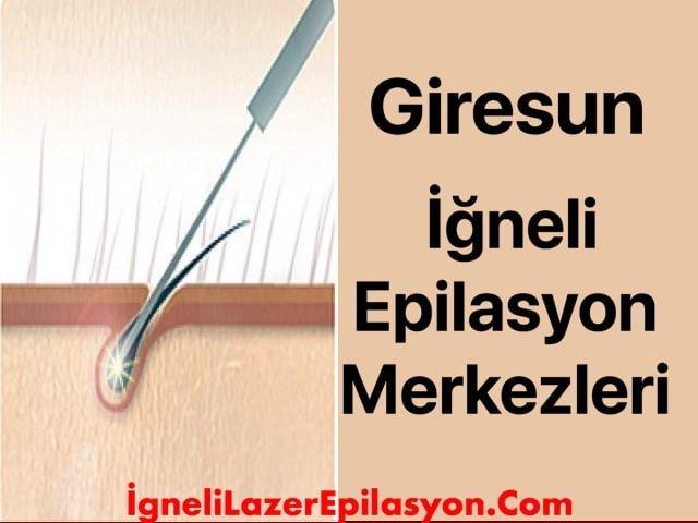 giresun iğneli lazer epilasyon yapan yerler