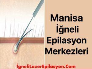 manisa iğneli lazer epilasyon yapan yerler