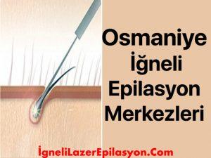 osmaniye iğneli lazer epilasyon yapan yerler