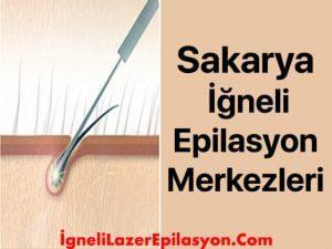 sakarya iğneli lazer epilasyon yapan yerler