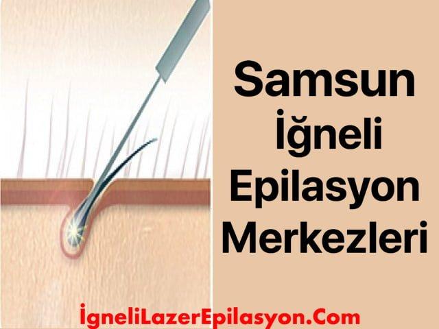 samsun iğneli epilasyon merkezleri