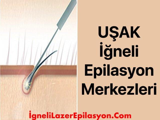 uşak iğneli lazer epilasyon merkezleri